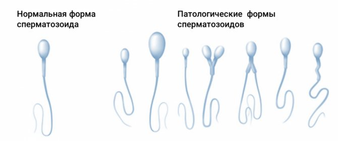 Патологические формы в спермограмме. дефект головки сперматозоида — что делать при аномалии головки спермия. тератозооспермия: лечение народными средствами