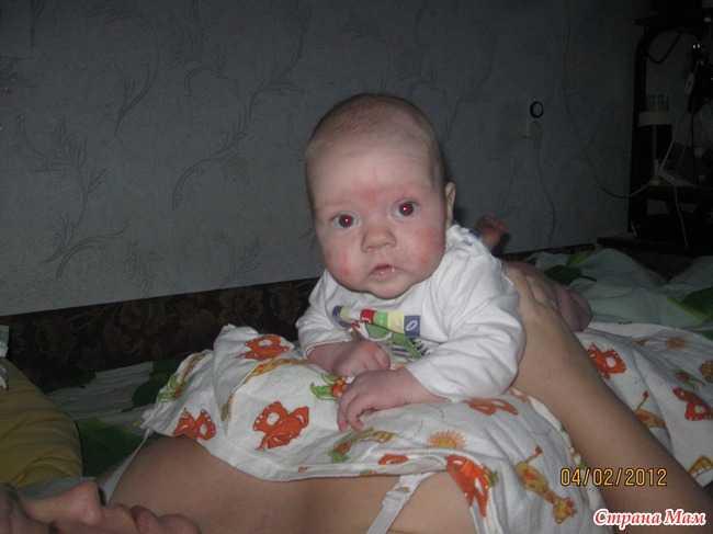 Ребенок плохо держит голову в 3 месяца: причины патологии, примеры упражнений для развития навыка