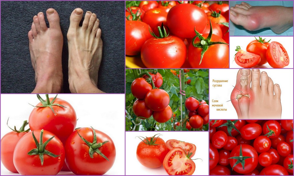 Тошнит от помидор при беременности