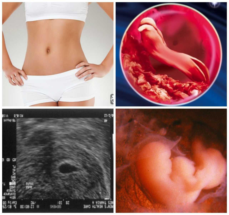 Развитие плода на 10 неделе беременности (27 фото): что происходит с малышом, размер ребенка и ощущения, как выглядит эмбрион на 10 акушерской неделе