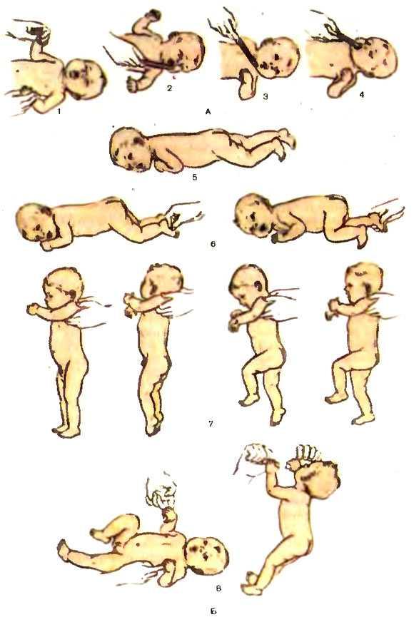 Физиологические рефлексы новорожденных — таблица по месяцам
