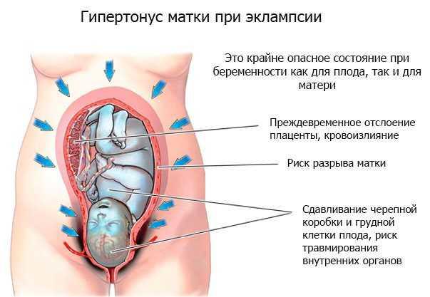 Гипертонус матки: симптомы в 1, 2 и 3 триместре. как снять повышенный тонус матки при беременности?