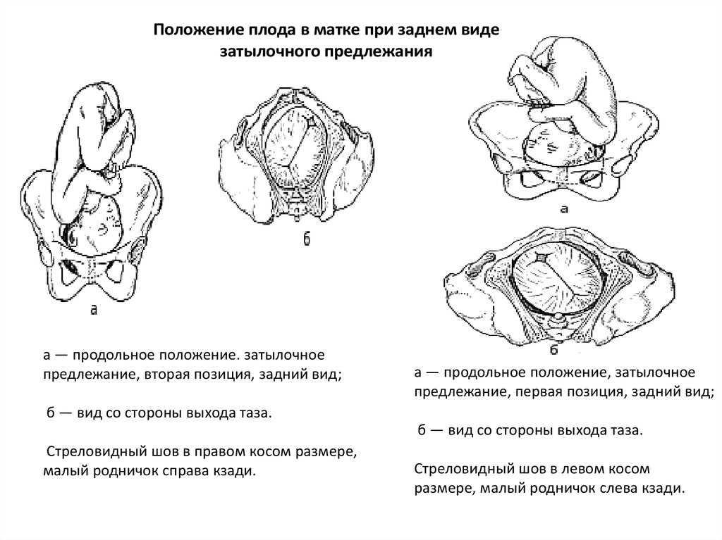Лекция № 12. поперечное и косое положение плода