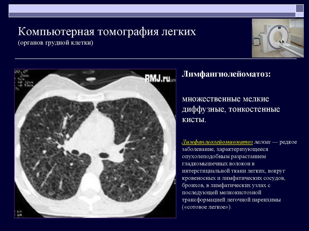 Кт или рентген: сравнение, радиационная нагрузка, преимущества и недостатки методов лучевой диагностики