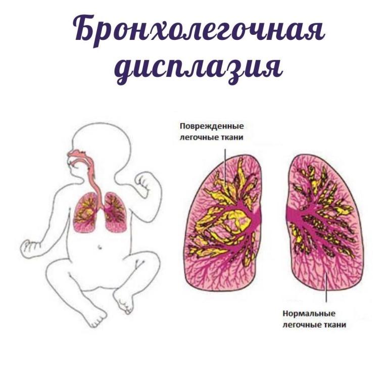 Бронхолегочная дисплазия у недоношенных новорожденных детей: лечение, причины, симптомы