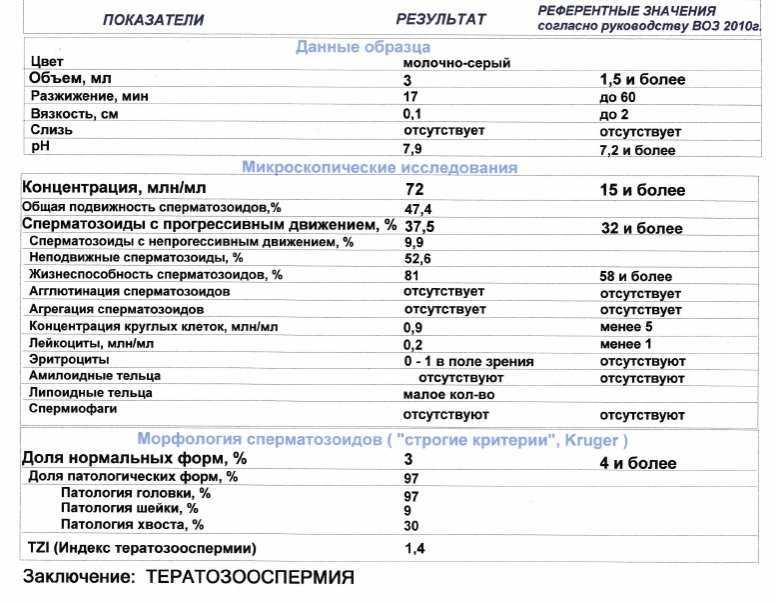 Патология головки сперматозоида в спермограмме: норма и аномалии | vrednuga.ru