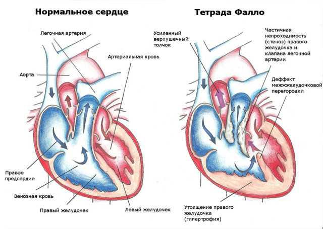 Гиперэхогенный фокус в левом желудочке сердца плода: диагностика, причины