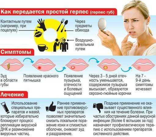 Герпес при беременности - особенности лечения, препараты.