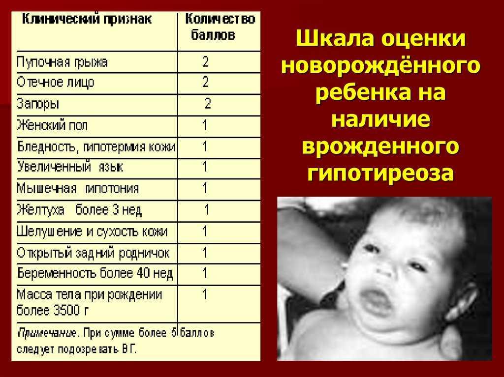 Повторный анализ на галактозу у новорожденных. галактоземия у детей. галактоземия: симптомы у новорожденных