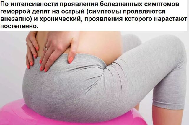 Геморрой на 38 неделе беременности, как лечить болезнь до родов