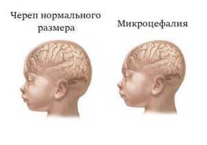 Что такое незрелость головного мозга у новорожденных и какие признаки на нее указывают?