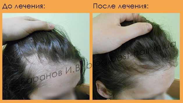 Выпадение волос после родов и во время лактации: причины, лечение и уход