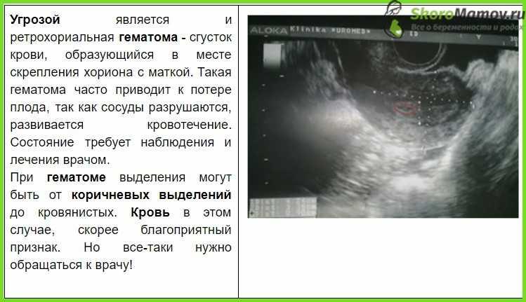 Ретрохориальная гематома в матке при беременности на ранних сроках - причины, лечение |             эко-блог