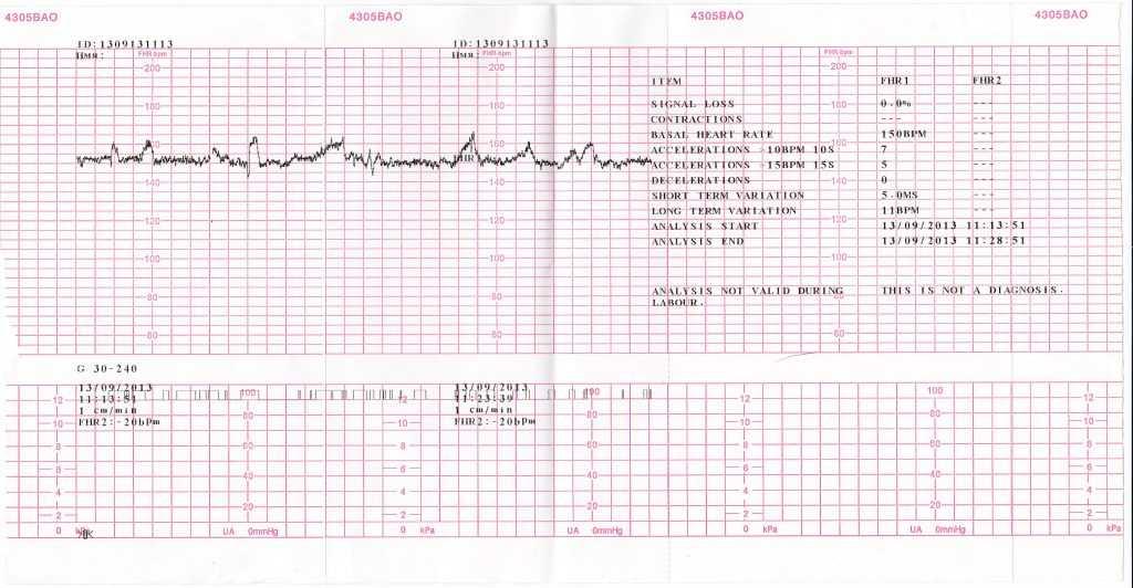 Ктг при беременности (45 фото): что это такое, что показывает кардиотокография, как ее делают беременным, что такое начальные нарушения состояния плода, сколько длится и как подготовиться