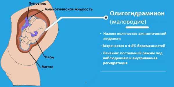 Многоводие и маловодие при беременности: симптомы и лечение | курсы и тренинги от лары серебрянской