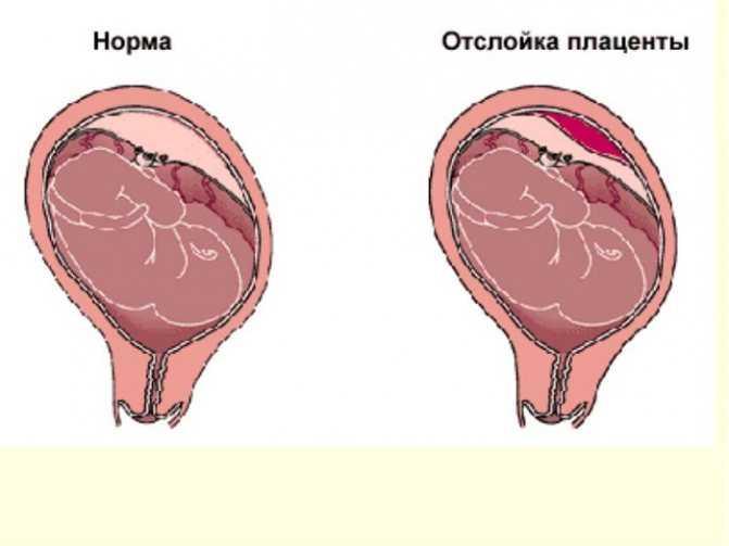 Плацента (хорион): что это такое, когда формируется при беременности, типы, функции и строение у беременных, сколько весит, развитие и особенности образования
