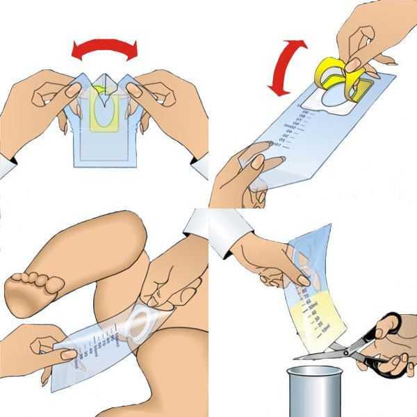 Как собрать мочу у грудничка мальчика или девочки - правила