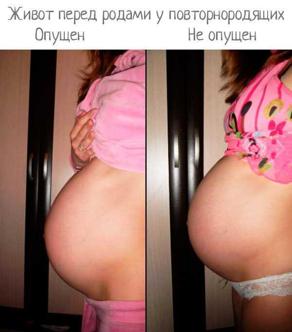 Сроки опущения живота перед родами у повторнородящих