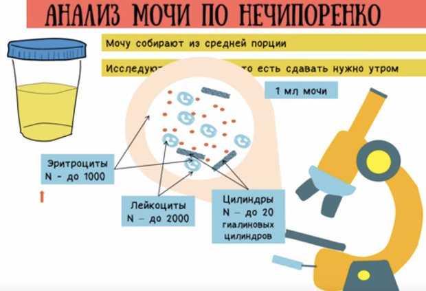 Подготовка у беременных к сдаче мочи по нечипоренко,расшифровка