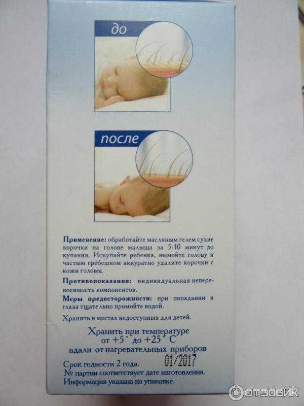 Корочки на голове у грудничка: причины появления и как убрать