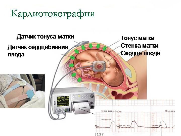 Чем лечить тонус матки при беременности второй триместр беременности