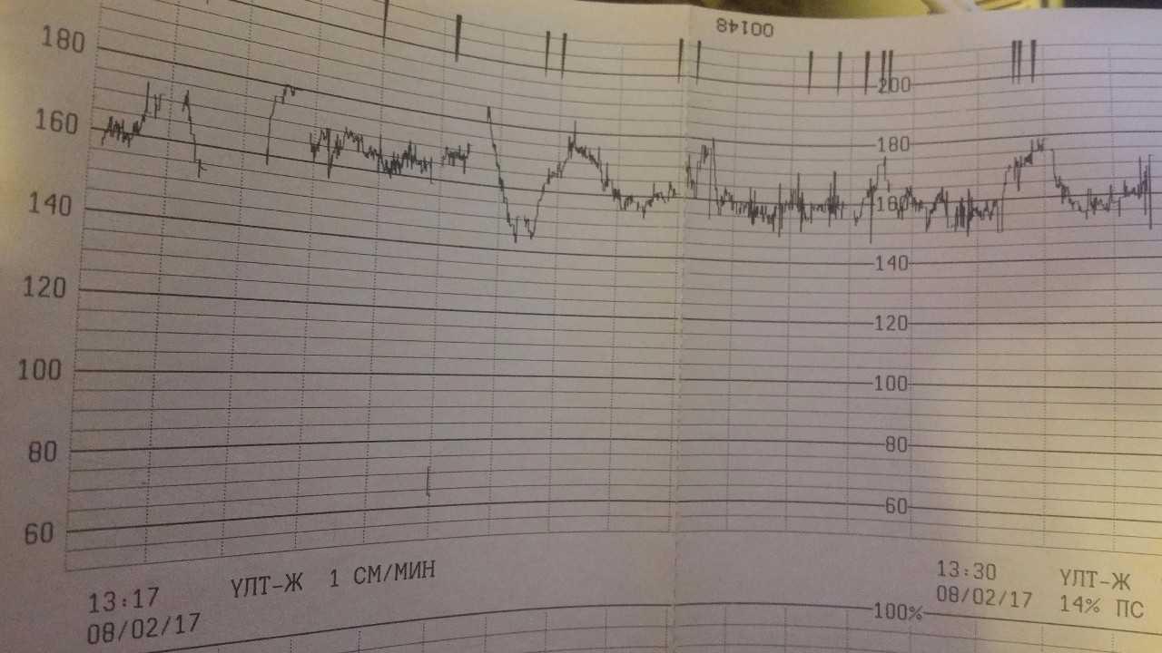 Ктг при беременности: когда и как делают, нормы и расшифровка, подготовка к кардиотокографии плода / mama66.ru