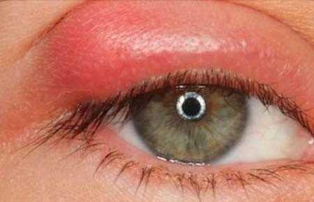 Ячмень на глазу при беременности – особенности лечения oculistic.ru ячмень на глазу при беременности – особенности лечения