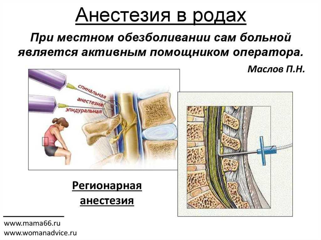 Анестезия в акушерской практике