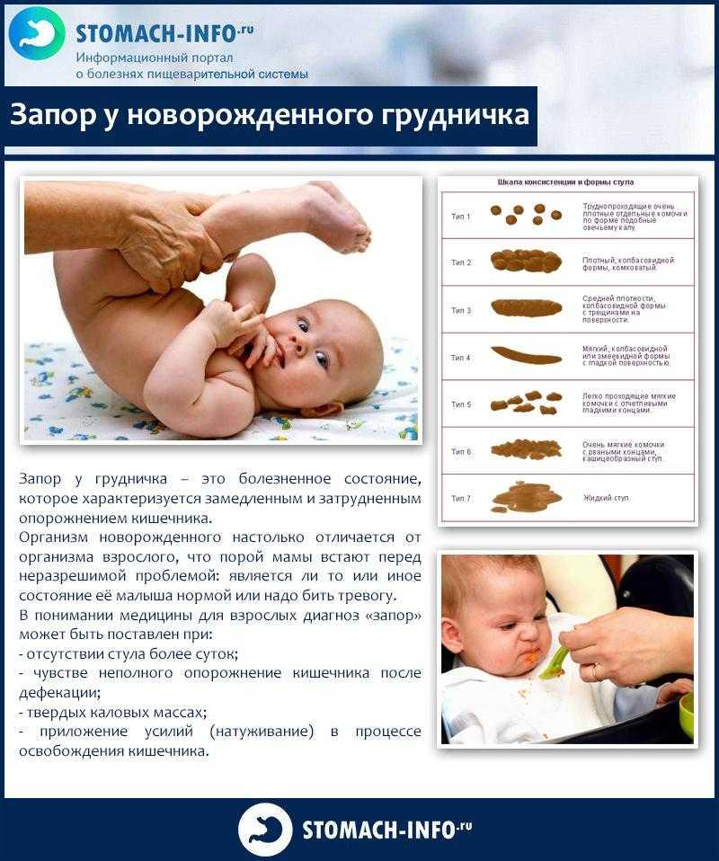 Запор у грудничка: как помочь новорожденному при грудном вскармливании