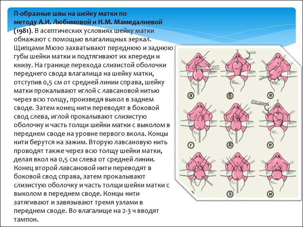 Швы на шейке матки при беременности: наложение швов и зашивание матки, серкляж и рекомендации, отзывы