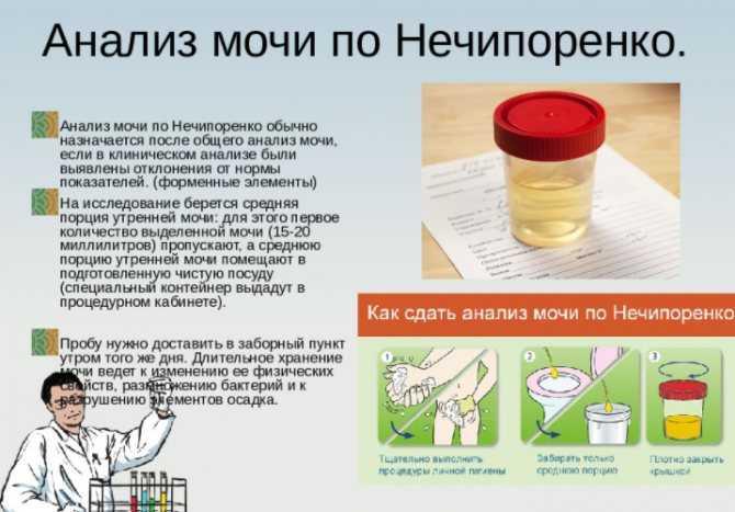 Аскорбиновая кислота в моче у ребенка