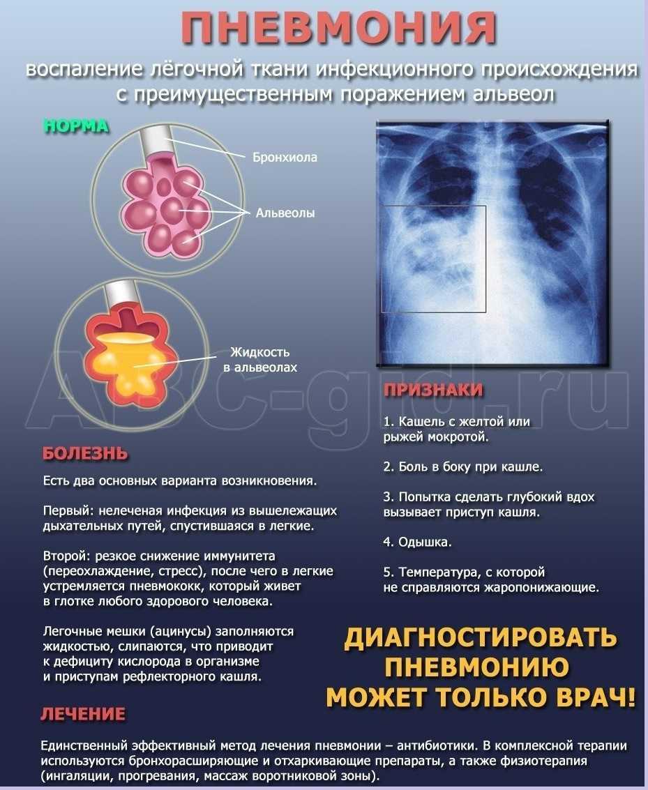 Психосоматика воспаления легких и туберкулеза, психосоматические причины болезней легких, саркоидоза