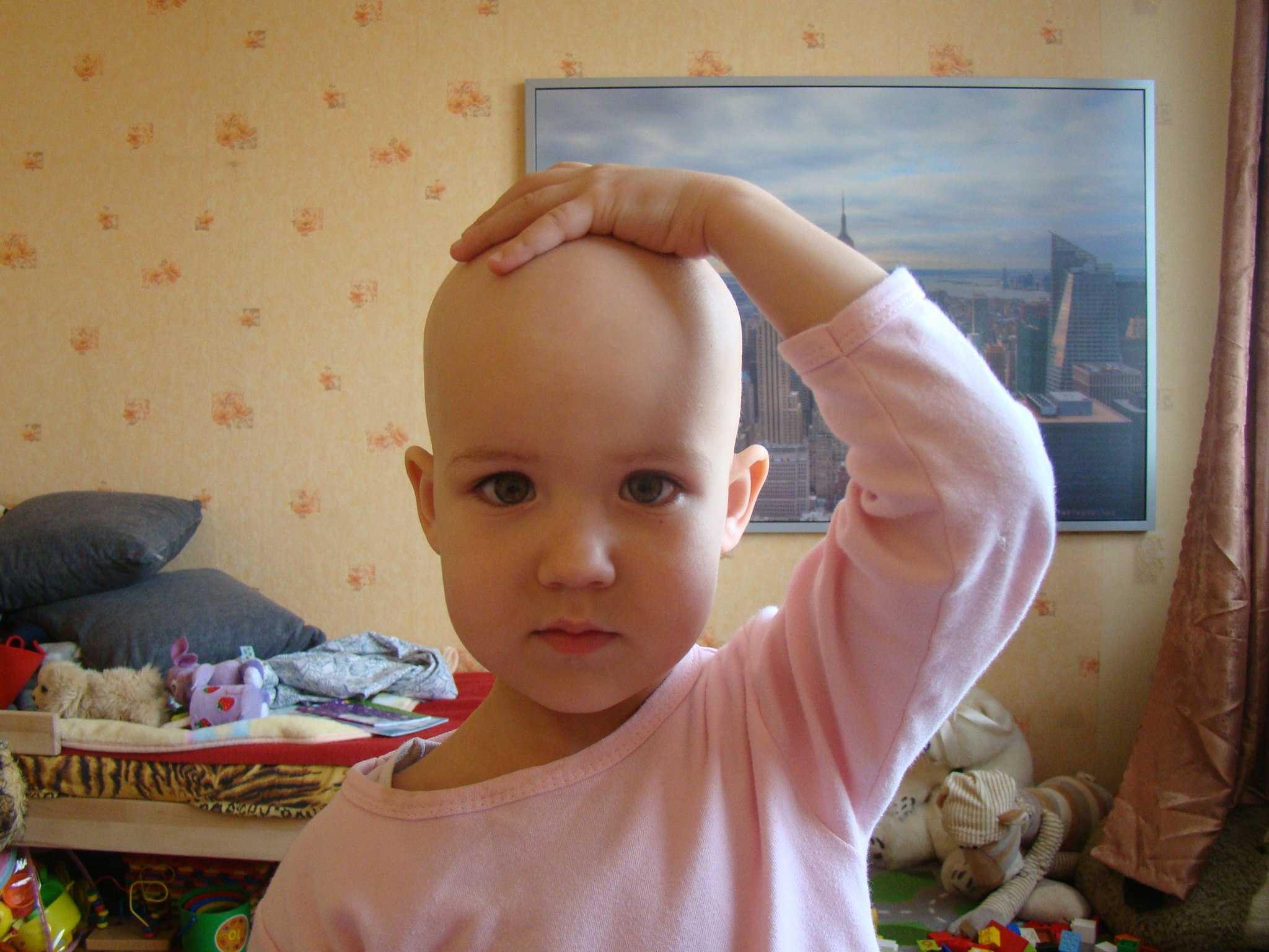 У ребенка медленно растут волосы: причины и как ускорить рост волос
