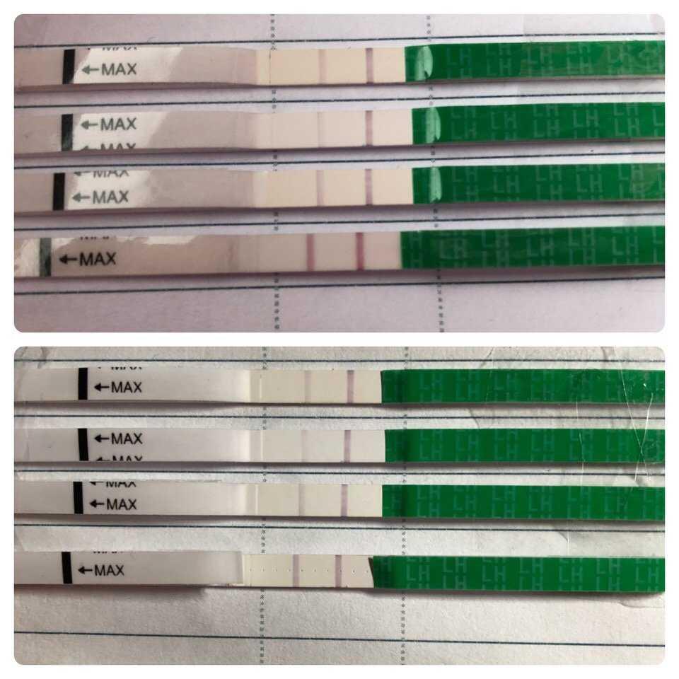 Микроскоп для определения овуляции: что это такое и в каких случаях подойдет, а также обзор наиболее удобных моделей тестов фирм ovulux, lady-q и других
