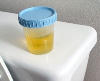 Моча у ребенка прозрачная как вода