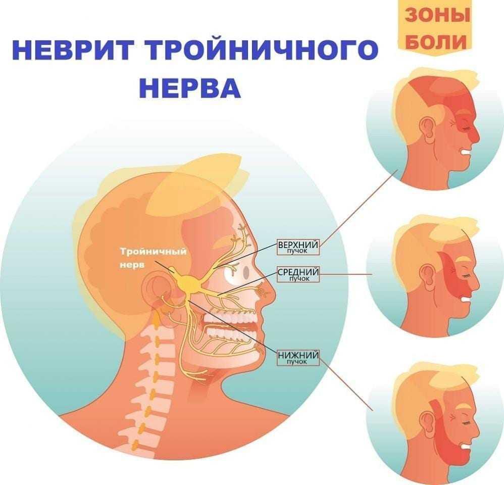 Синдром чарлина: симптомы, причины, лечение, профилактика невралгии носоресничного нерва
