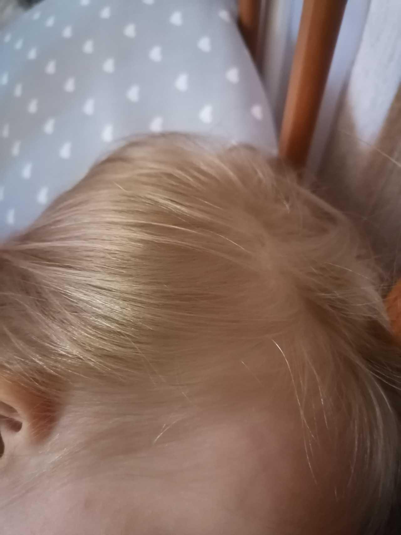 У ребенка плохо растут волосы на голове – в чем причина?