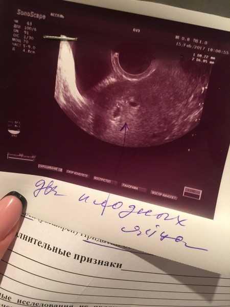 Первая неделя беременности: признаки и ощущения, что происходит, симптомы, узи, видео