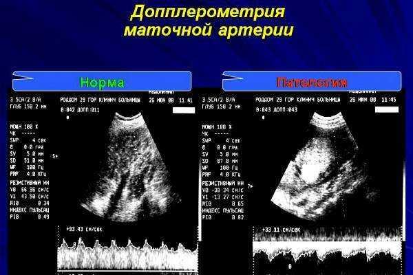 Передняя мозговая артерия: сегменты, индекс резистентности, норма, аневризма, ветви