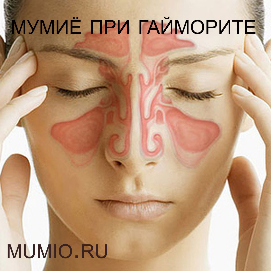 Болячки в носу психосоматика