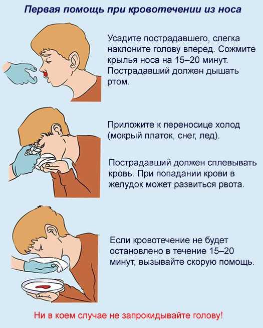 Кровь из носа у ребенка: причины носовых кровотечений, почему часто идет кровь, как остановить