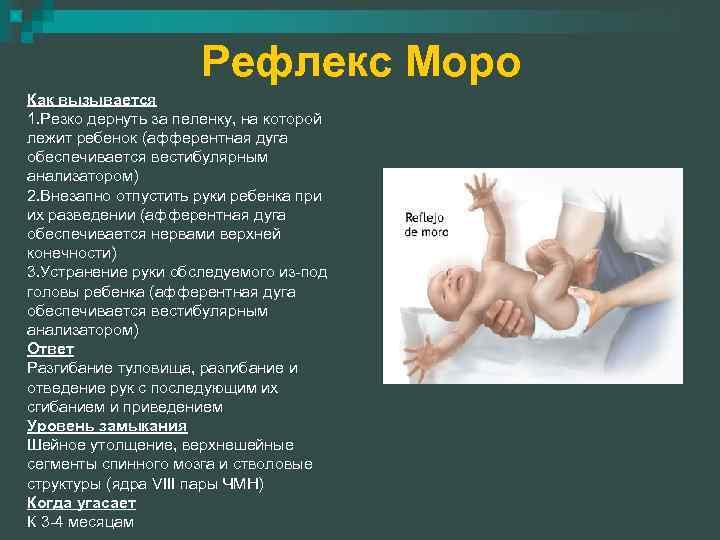 Основные особенности проявления рефлекса моро у новорожденных малышей