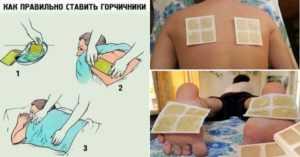 Горчичники при беременности: можно ли их ставить беременным (на грудную клетку при кашле, на спину, в носки, прочее) в 1, 2, 3 триместре