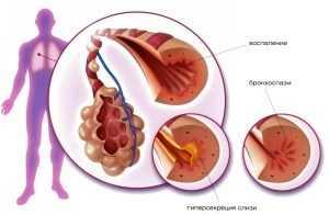 Кашель во втором триместре беременности  – лечение и профилактика