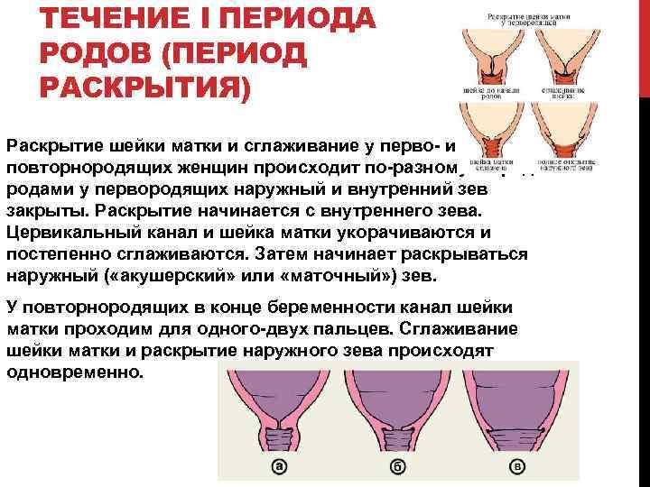 Раскрытие шейки матки на 1, 2 пальца, когда начинается, через сколько ждать роды, как ускорить