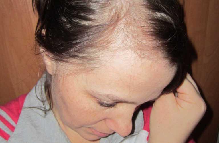 Причины выпадения волос после родов при грудном вскармливании, что делать?