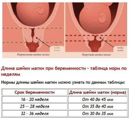 Цервикометрия: что это такое, нормы показателей, на каком сроке делают узи шейки матки с цервикометрией при беременности
