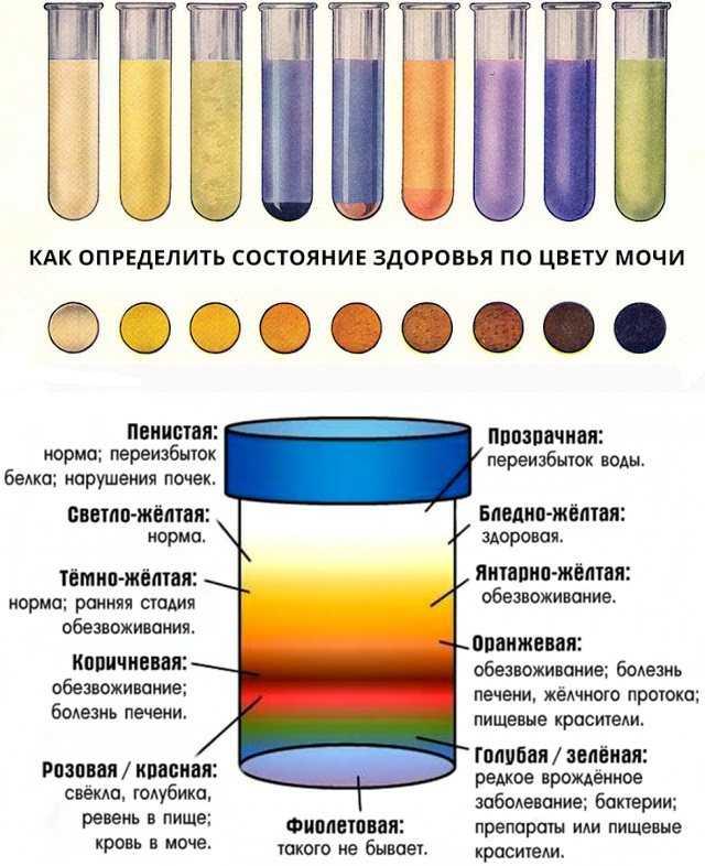 После свеклы моча красная: почему так бывает, нормально ли это, надо ли идти к врачу, надолго ли меняет цвет?