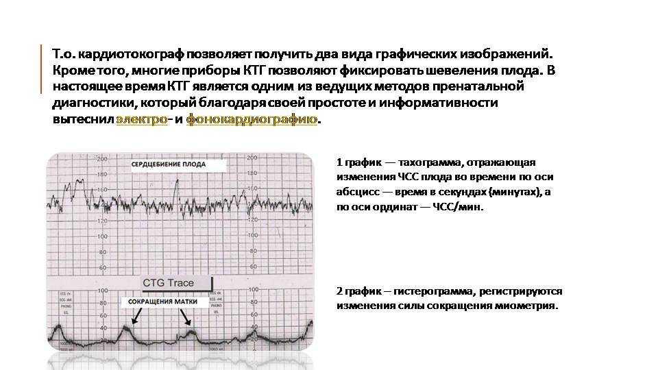 Ктг — кардиотокография плода