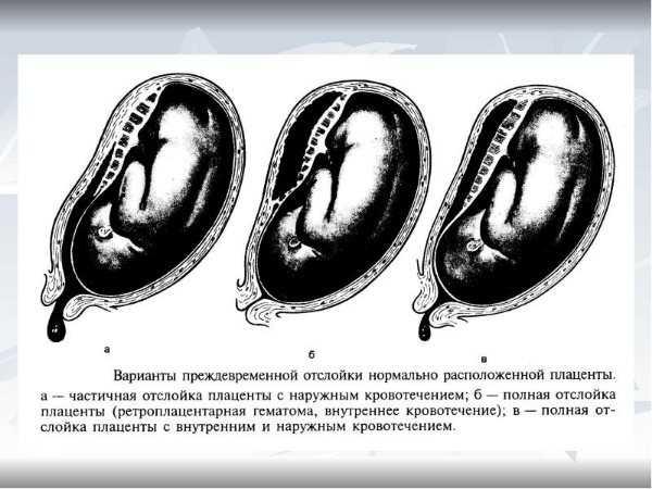 Отслойка плаценты - симптомы, диагностика, лечение